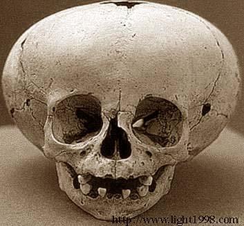 elongated-skulls-nephilim